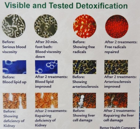 Detoxification Before and After
